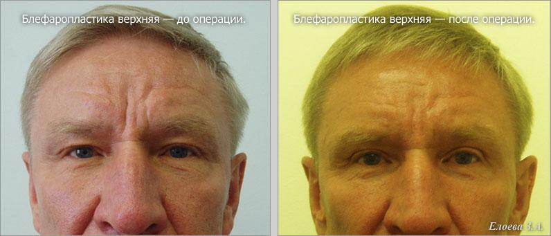 Блефаропластика у мужчин фото до и после